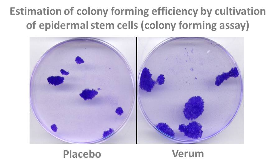 colony forming assay