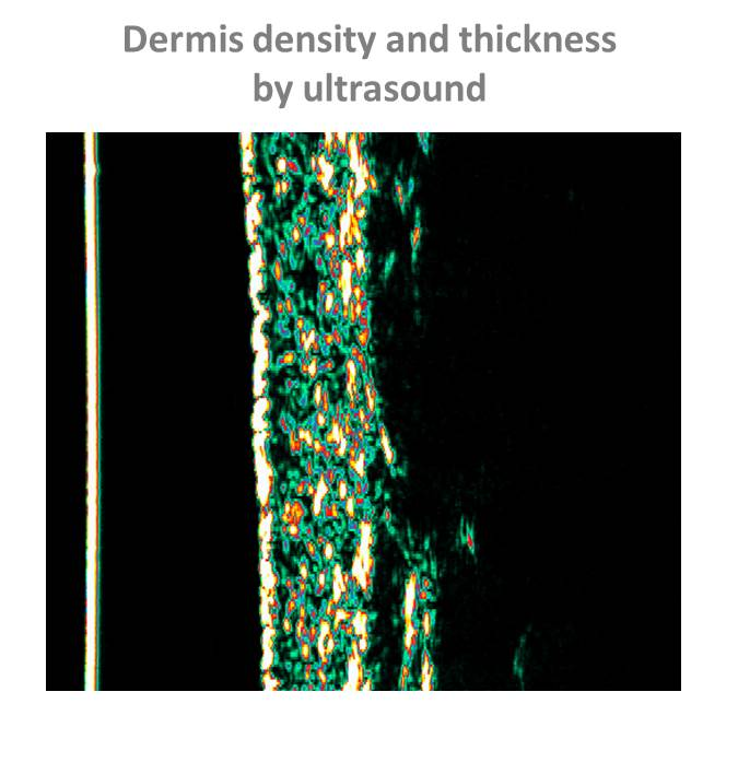 Analysis of dermis density and thickness